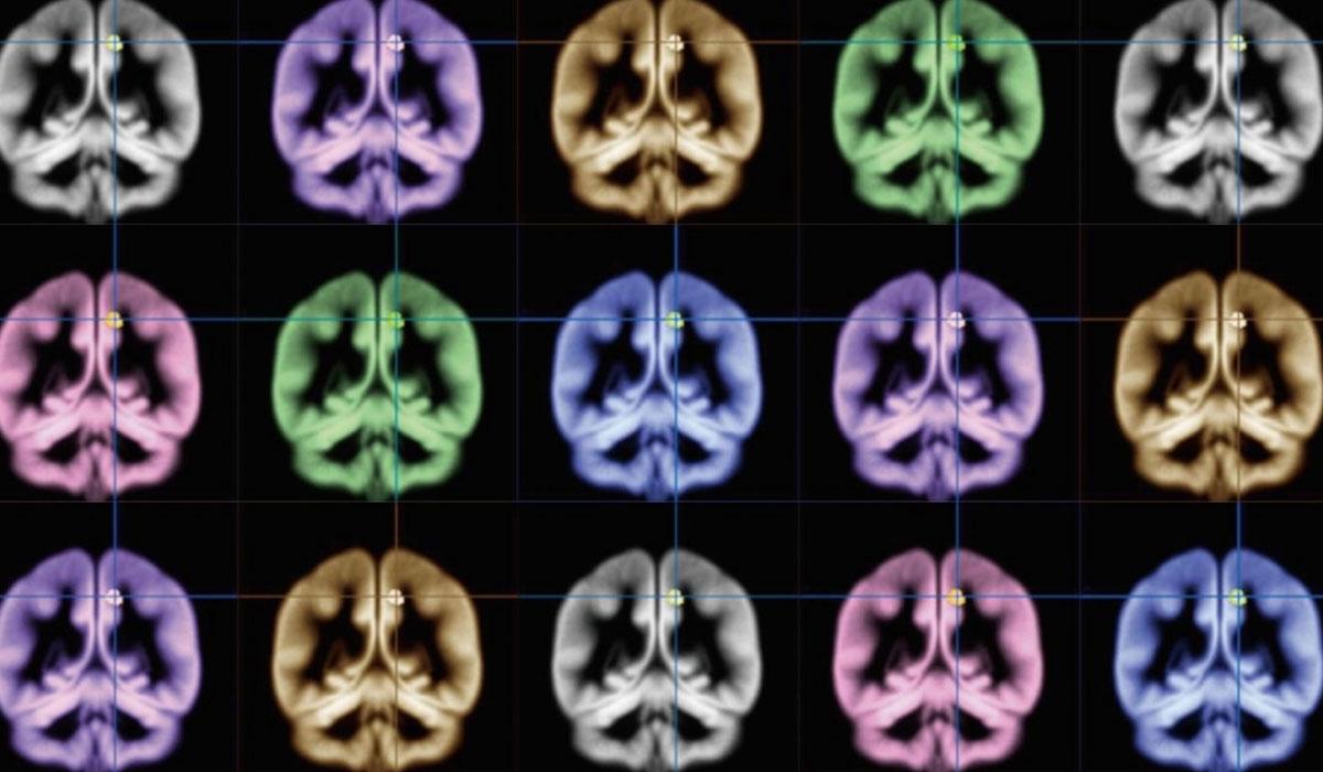 Een Oculus-directeur wil een wearable MRI-scanner maken