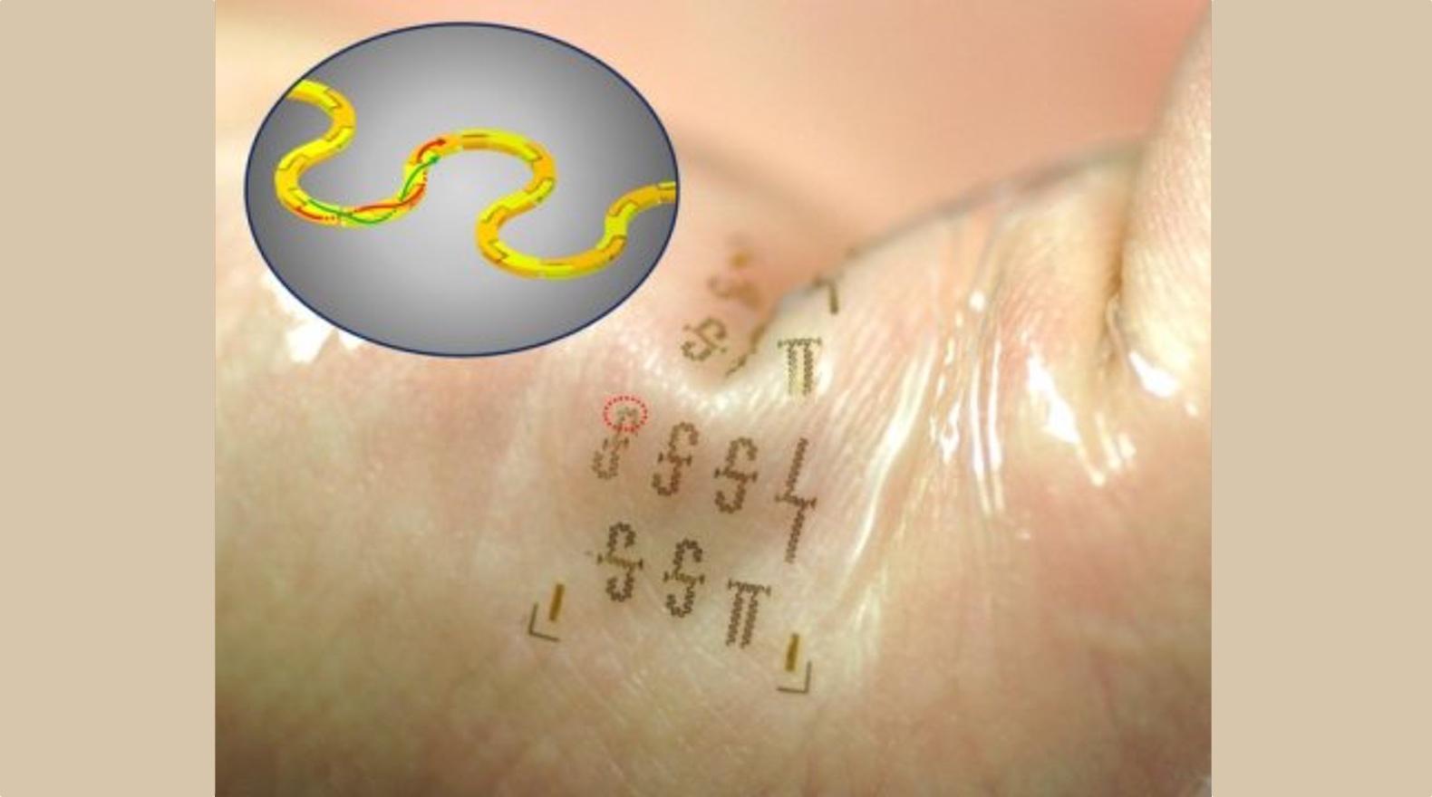 'Pleister met flexibele circuits luidt tweede generatie wearables in'