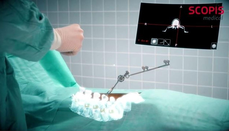 Microsoft HoloLens kan dienen als augmentedrealityassistent voor spinale chirurgie